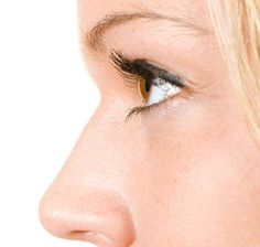 Transform your facial appearance with Non-surgical Nose Job
