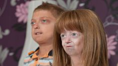 Okines aged at an accelerated rate because of progeria, a rare genetic condition. Old Person, Hayley Okines, Genetics, Year Old, Teen, Science News, Washington, Pizza, Age