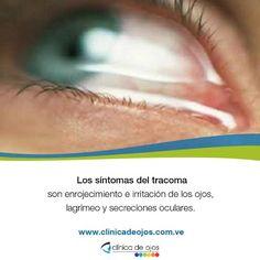 Los síntomas de tracoma incluyen comezón e irritación de los ojos y párpados, secreciones de los ojos, dolor y visión borrosa. A medida que la infección progresa, las pestañas viran hacia el interior del ojo, rasguñando la córnea. Ésta condición es llamada triquiasis, y si no es tratada, hace que la córnea se vuelva nubosa y eventualmente produzca úlceras corneales.
