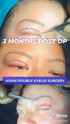 A glance into the healing process from immediately after to 3 months post op Asian Double Eyelid Surgery. #plasticsurgerybeforeandafter #surgery #eyelids #cosmetics #aesthetic Double Eyelid, Eyelid Surgery, Plastic Surgery, Beauty Routines, 3 Months, Healing, Asian, Graphic Design, Cosmetics