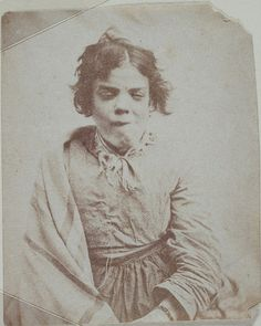 Portrait of a patient, Surrey County Asylum. Looks like she had more than one lobotomy! So sad!!!!!!
