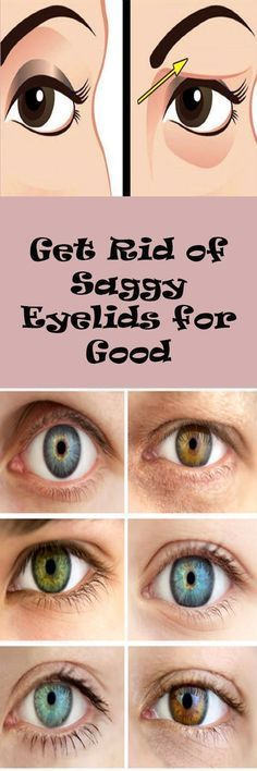 Get Rid of Saggy Eyelids for Good