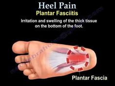 How I got rid of long-term plantar fasciitis, or heel pain – Typical Miracle Remedies For Plantar Fasciitis, Plantar Fasciitis Stretches, Plantar Fasciitis Treatment, Plantar Fasciitis Shoes, Sore Heels, Foot Pain Relief, Heel Pain, Ankle Pain, Health And Beauty Tips
