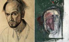 Los autorretratos que William Utermohlen pintó tras serle diagnosticado alzhéimer ayudan a comprender el desarrollo de esta dolencia