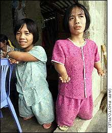 Image detail for -... that besets Vietnam from the spraying of Agent Orange forty years ago