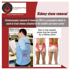 Urologist in Mumbai: Never get confused about 'Whom to consult?' when you have urinary disease. Advanced Laparoscopic / Keyhole Reconstructive Urology treatments are available here Urology Specialist, mumbai.For more details: http://www.urologistmumbai.com/