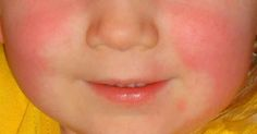 When our children are struck with an illness we are eager to find the right solution to bring them back to normal. When Scarlet Fever strikes, characterized by its rash, the itch, and sore throat, we rush into a frenzy to try anything to stop it. This frenzy has become more common since 2015 as... View Article