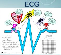 Basics Amazing site for learning how to read an EKG! Nursing students: this is gold!Amazing site for learning how to read an EKG! Nursing students: this is gold! Nursing School Tips, Nursing Tips, Nursing Notes, Nursing Schools, Ob Nursing, Cardiac Nursing, Nursing Mnemonics, Nursing Degree, Pharmacology Mnemonics