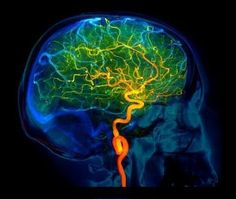 Brain blood vessels. Coloured 3D lateral angiogram (blood vessel X-ray) of the blood vessels in the brain of a healthy 32-year-old. The blood vessel in the neck is the left internal carotid artery. The cerebral arteries (orange) are shown with the cerebral veins (blue). This image was produced by Digital Subtraction Angiography (DSA), using a contrast medium to highlight the blood vessels.  Credit: ZEPHYR/SCIENCE PHOTO LIBRARY