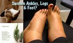 Essential Oils for Swollen Ankles, Legs & Feet...Apply 2 drops each of Lemongrass, Grapefruit and Cypress essential oils diluted in 1 T. of fractionated coconut oil, massage into feet, ankles and calves upwards towards the heart. If you can someone to do it for you, all the better!