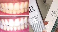 WOW... I'm actually loving my products from @tillyritabeauty at the moment!! Peroxide free whitening toothpaste. Non abrasive which restores all natural whiteness it is safe to use by all and I even use it myself!! You can simply this paste as much or as little as often however best results are seen from daily usage follow @tillyritabeauty now for prices and information and for free delivery on your orders use the code MAKEUPBYGEORGIAGRAY  #makeupaddict #makeup #makegirlz #allmodernmakeup…
