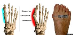 Bunions: When Do They Become Something To Worry About?