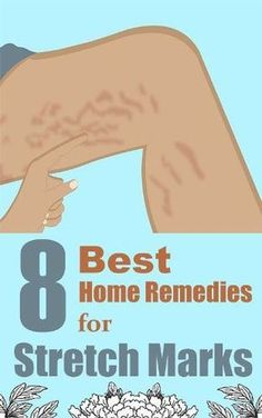 8 Best Home Remedies for Stretch Marks
