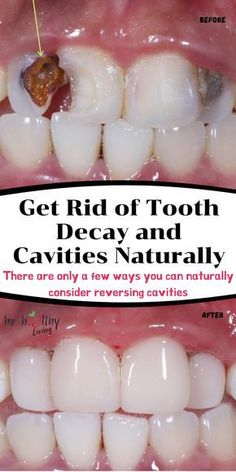tooth teeth heal tooth decay tooth ache relief tooth cavity remedies tooth … - Everything You Need To Know About Oral Health Teeth Health, Healthy Teeth, Oral Health, Dental Health, Infection Des Sinus, Baking Soda Teeth, Homemade Toothpaste, Heal Cavities, Salud Natural