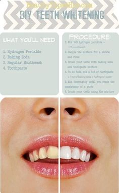 Homemade Teeth Whitening.