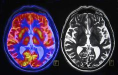 Hele princippet om, at man kan udlede, hvordan hjernen virker ved at findenogle pletter på et skanningsbillede, er tvivlsom, lyder det fra Albert Gjedde, professor på København Universitets Institut for Neurovidenskab og Farmakologi.