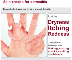 Check your skin for signs of dermatitis