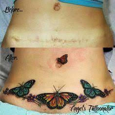 Resultado de imagen para tummy tuck scar cover tattoo