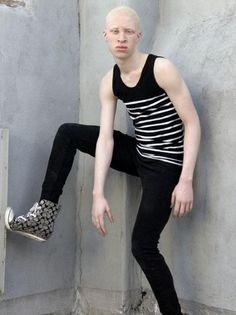 Tumblr | Shaun Ross, Model -- Portrait - Albino - Editorial - Photography