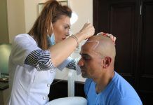 How many scalp micropigmentation sessions will you need?