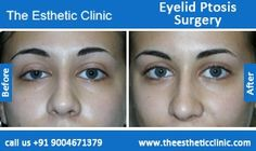 Upper Lower And Double Eyelid Ptosis Surgery Drooping Before After Photos