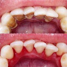 -  . . . . . . #dentist #dentistry #alldent #udental #alldental #dokter #doktergigi #doktergigijakarta #calculus #stein #gingivitis #stilllearn #dentalphotography #makeover #smile #tooth #teeth #jakarta #mandibular #beforeafter #gigi #odontologia by drgsteven Our General Dentistry Page: http://www.myimagedental.com/services/general-dentistry/ Google My Business: https://plus.google.com/ImageDentalStockton/about Our Yelp Page: http://www.yelp.com/biz/image-dental-stockton-3 Our Facebook Page…