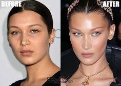 Botox Brow Lift, Eyebrow Lift, Bella Hadid Nose, Bella Hadid Hair, Bella Hadid Makeup, Cheek Implants, Plastic Surgery Gone Wrong, Cheek Fillers, Fox Eyes