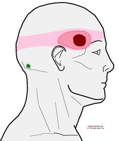 Understanding Trigger Points - Headache Spot Just Above The Temple