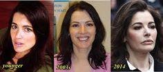 Resultado de imagem para nigella lawson before and after plastic surgery✿⊱╮