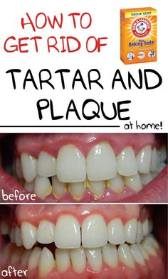 How To Remove Plaque Between Teeth Natural Remedies