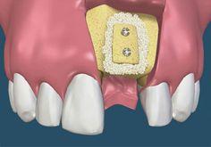 Thời gian trồng răng implant khi xương hàm không đạt