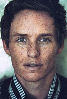 Eddie Redmayne's freckles