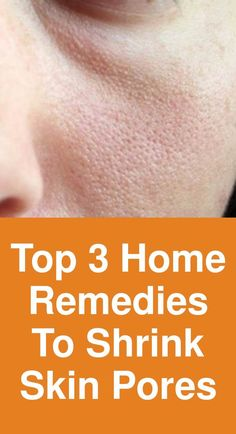 Top 3 home remedies to shrink skin pores Top 3 home remedies to shrink skin pores Remedy Ice Ice tightens the skin and shrinks pores. This remedy not only improves your skin's ap Shrink Pores, Skin Tightening, Diy Skin Care, Pimples, Home Remedies, Your Skin, Anti Aging, Improve Yourself, Moisturizer