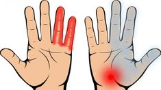 My Cardiologist Unclogged My Arteries And Removed The High Blood Pressure With Just 4 Tablespoons – MayaWebWorld Pressure Points, High Blood Pressure, First Signs Of Diabetes, Hemorrhoid Relief, Giving Up Smoking, Carpal Tunnel, Cellulite, Body Care, Herbalism