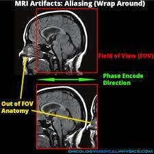 aliasing artifact mri - Google Search Anatomy, Darth Vader, Cap, Google Search, Movie Posters, Movies, Fictional Characters, Baseball Cap, Films