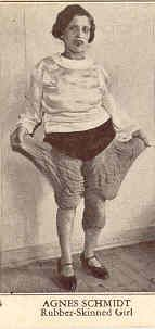 "Miss Agnes Schmidt ""Rubber-Skinned Girl"" or ""Elephant Girl,"" had skin at the top of her legs that was over a foot long, so it stretched far off her body. During the 1930s she performed with the sideshow Ripley's Believe It or Not. She was never married."