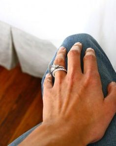 Heat Rash Under Wedding Ring