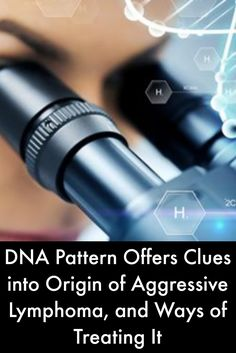 DNA Pattern Offers Clues into Origin of Aggressive Lymphoma, and Ways of Treating It #LymphomaNews