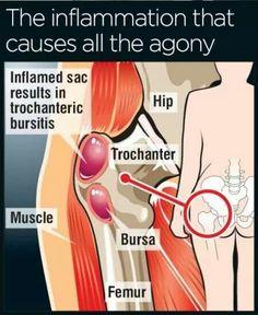 Hip Flexors Acute Hip Pain - Trochanteric Bursitis -the current annoyance.Acute Hip Pain - Trochanteric Bursitis -the current annoyance. Fitness Workouts, Psoas Iliaque, Best Exercise For Hips, Bursitis Hip, Hip Bursitis Exercises, Arthritis Exercises, Gluteal Muscles, Psoas Release, Sciatica Pain