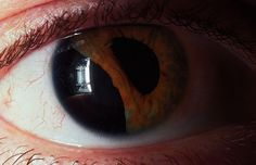 Traumatic iridodialysis. The iris has pulled away from the ciliary body as a result of blunt trauma.