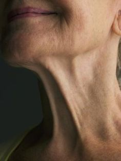 Natural Remedies and Vitamins for Sagging Neck Skin