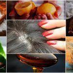 Never Ending Dandruff Dandruff Solutions, Getting Rid Of Dandruff, Shiny Hair, Home Remedies, Home Goods, Avocado, Hair Beauty, Glossy Hair, Brighter Hair