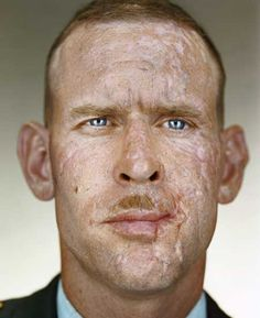 This picture is very compelling, as it shows the sacrifice which soldiers make for our country. This picture represents injuries from the Iraq war. iraq war veteran joseph mosner, by martin schoeller.