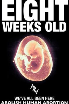 Eight weeks old: we've all been here. Abolish Human Abortion. Pro life