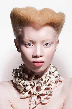 Albinismo (106)Ragazza Albino model.