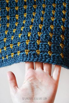 Speaking of lovely stitches, this is a pretty awesome one. Gorgeous pic from…