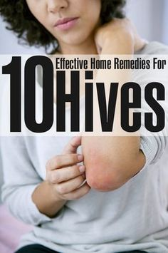 10 Effective Home Remedies For Hives - good article with ideas for things you most likely have in the kitchen or medicine cabinet. I would add bentonite clay and apple cider vinegar to the list.