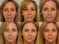 Here's a concrete example of what Sculptra can do for you. Patient had 4 vials Sculptra total over 3 injection sessions, over 6 months. From top left to bottom right. Cheek Fillers, Facial Fillers, Dermal Fillers, Marie Osmond, Facial Aesthetics, Medical Aesthetics, Cosmetic Fillers, Under Eye Fillers, Botox Before And After