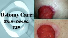 If you have soreness around your stoma due to ostomy leaks, here's a tip that might save your skin. Video included.