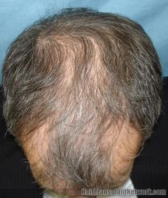 Photos Showing Excellent Hair Regrowth from Propecia (Finasteride)